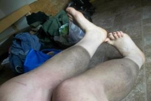 black-leg