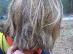 burnt-hair